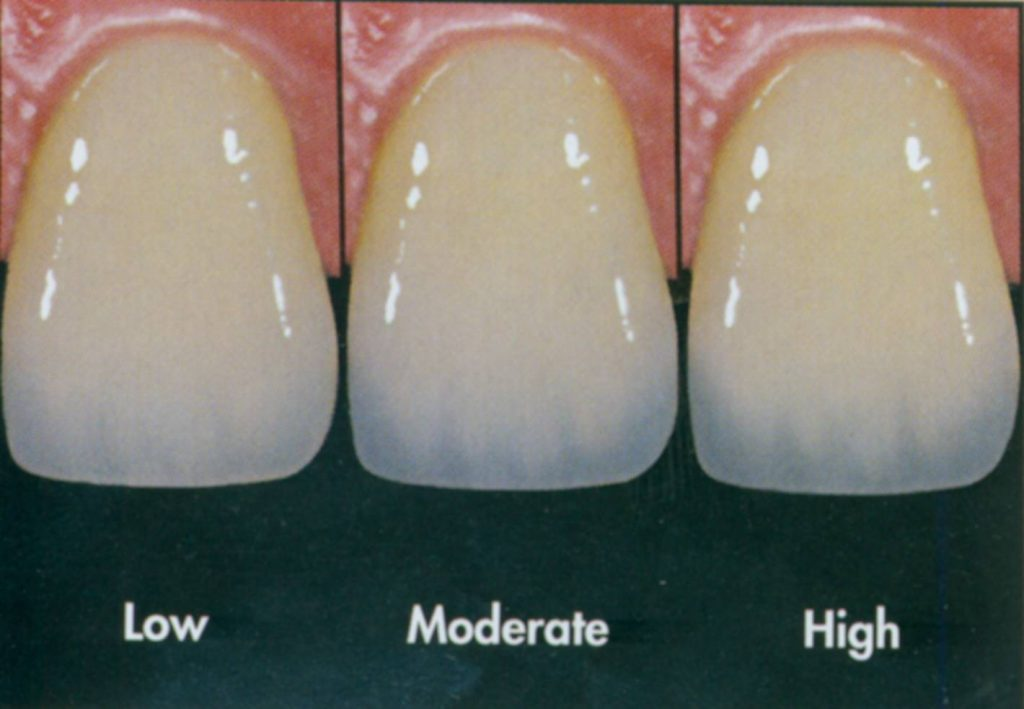 Tooth Translucency