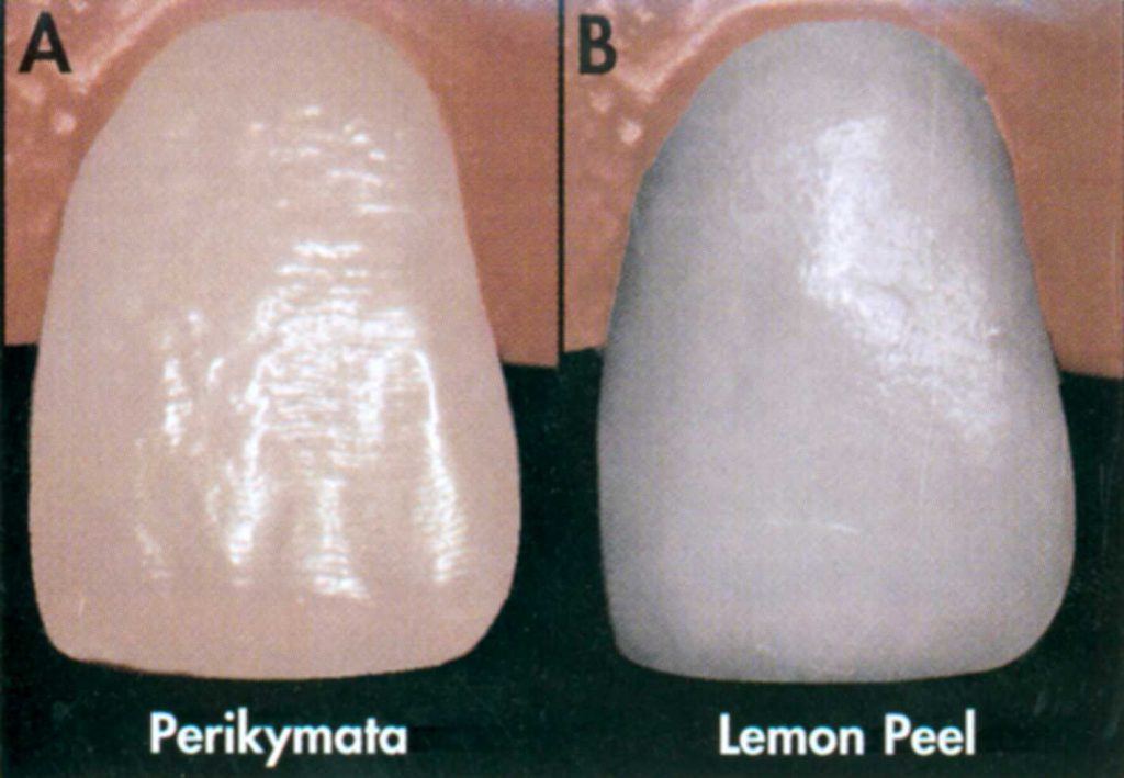 Tooth Surface Texture